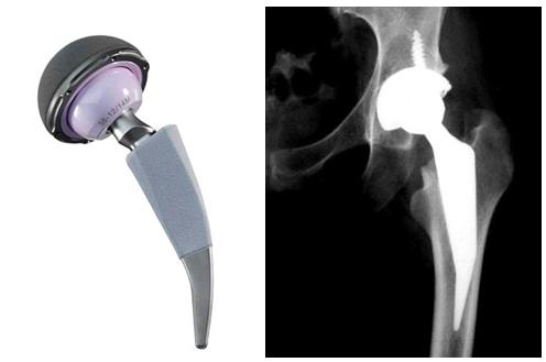Historia de la prótesis total de cadera - Sendagrup