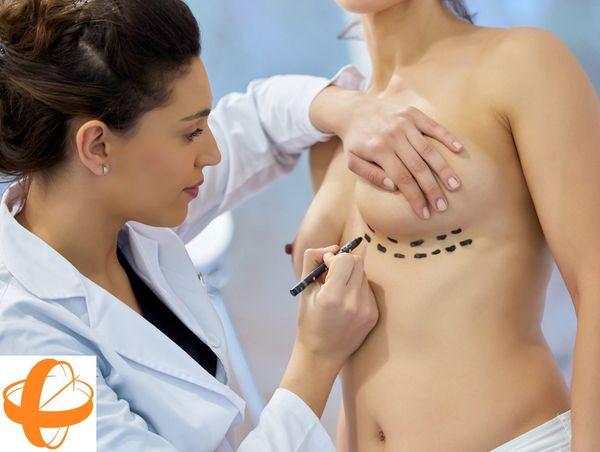 Implante mamario de contractura capsular