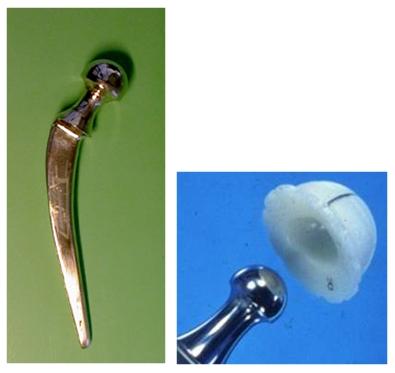 14-protesis-de-charnley
