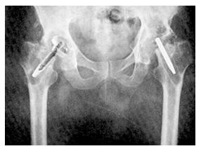5-paciente-con-protesis-judet