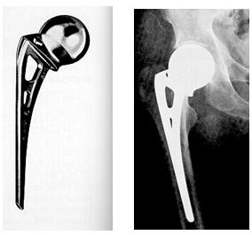7-protesis-moore