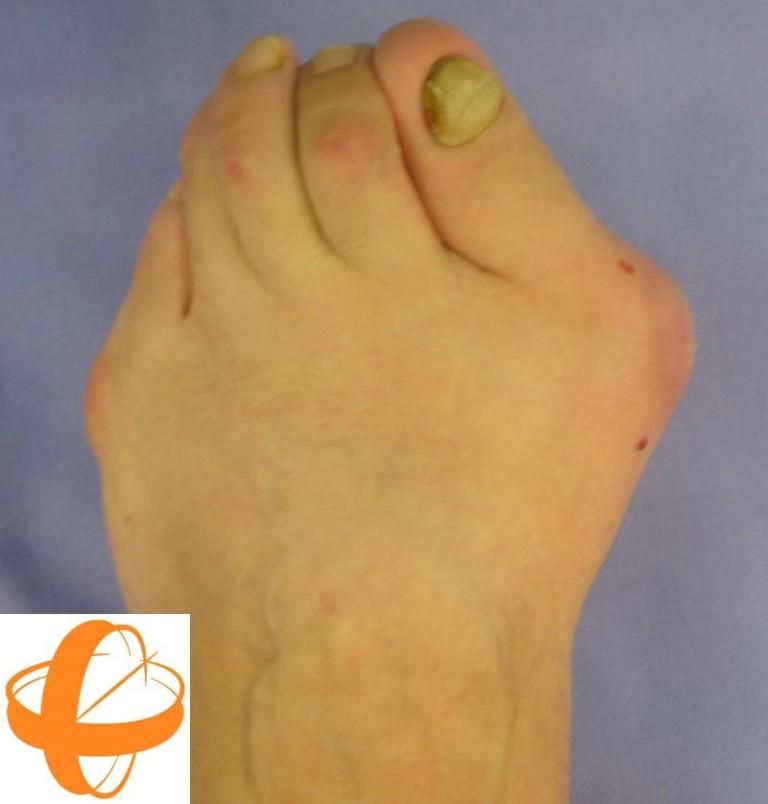 Cirug a percut nea del pie tratamiento del hallux valgus for Operacion de pies
