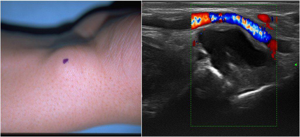 ecografia_musculo-esqueletica_1-1024x470