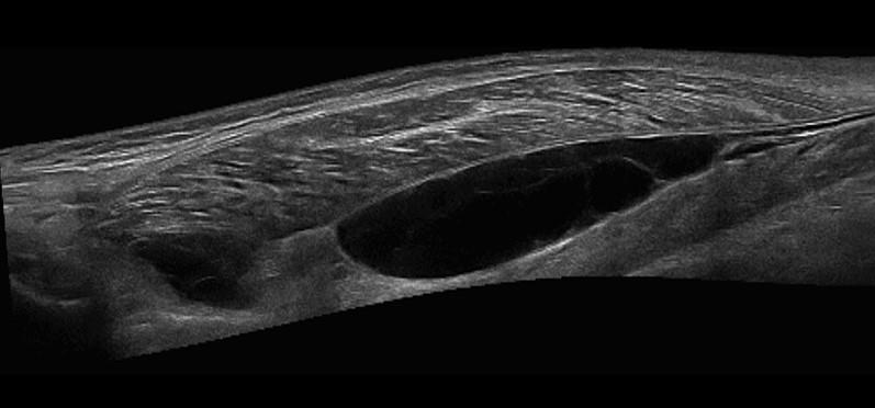 ecografia_musculo-esqueletica_2