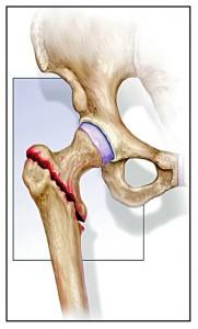 fractura_extracapsular_cadera-181x300