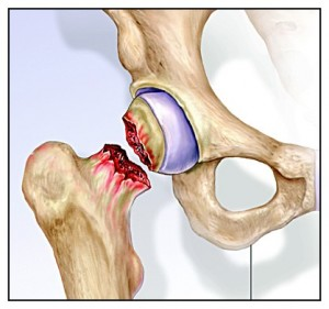 fractura_intracapsular_femur-300x281-1