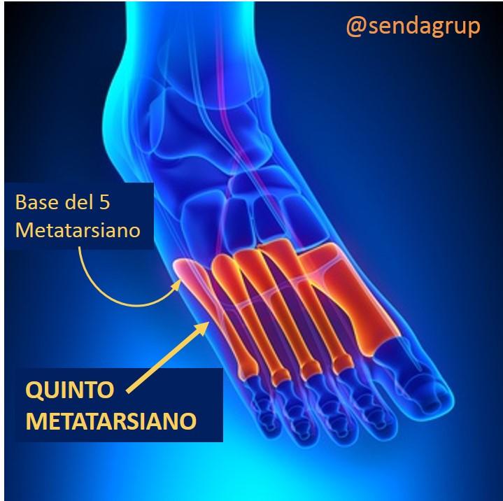 Tratamiento conservador de la fractura de la base del for Cuarto y quinto metatarsiano