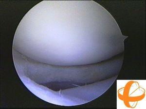 tecnica_artroscopia_meniscectomia_16-300x225
