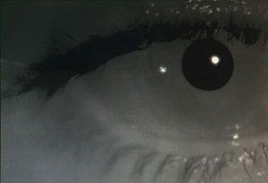 vertigo patologia vestibular orl otorrinolaringologia sendagrup