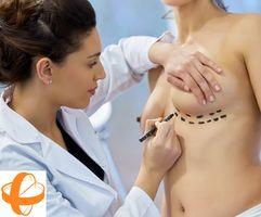 aumento mama, protesis de mama, contractura capsular