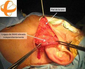 Foto 4 del texto del Dr. González: Refinamientos estéticos y funcionales en la cirugía de la glándula parótida. Centro Médico Sendagrup Donostia - San Sebastián. @Sendagrup @ORLZuatzu