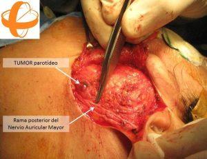 Foto 5 del texto del Dr. González: Refinamientos estéticos y funcionales en la cirugía de la glándula parótida. Centro Médico Sendagrup Donostia - San Sebastián. @Sendagrup @ORLZuatzu