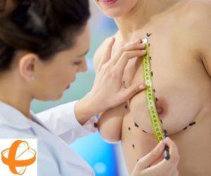 Cirujano plástico tomando medidas para Reconstrucción Mamaria, Aumento Mamas, Cirugía Mamas