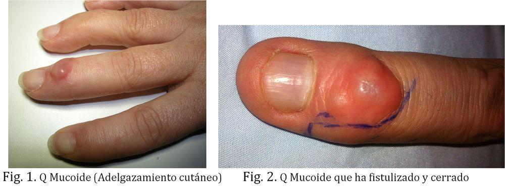 Quiste dermoide o Tumor mucoide de la mano, en dorso de dedos. Dr Goyeneche, Unidad de Mano de Sendagrup