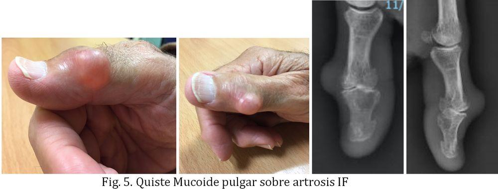 Tratamiento del Quiste dermoide o Tumor mucoide de la mano, en dorso de dedos. Dr Goyeneche, Unidad de Mano de Sendagrup