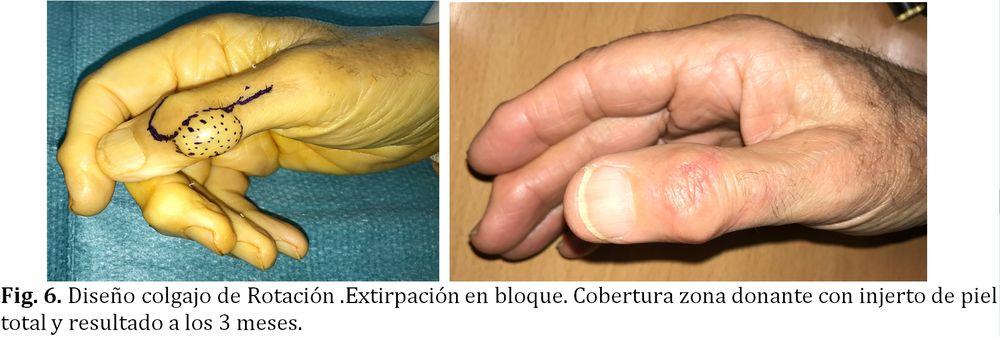 Resultado del Tratamiento del Quiste dermoide o Tumor mucoide de la mano, en dorso de dedos. Dr Goyeneche, Unidad de Mano de Sendagrup