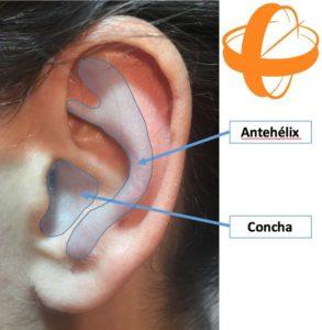 Orejas soplillo. Modificación del cartílago del pabellón auricular mediante cirugía plástica. Medicina estética.