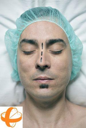 Corrección de la desviación del tabique nasal mediante septoplastia