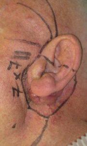 Utilidad y versatilidad del colgajo en isla de la arteria supraclavicular en reconstrucción de cabeza y cuello