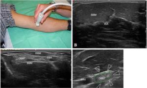 Ecografía del Tendón Distal del Bíceps Braquial. Dr. De la Fuente de la Unidad de Ecografía Musculoesquelética del Centro Médico Sendagrup de Donostia - San Sebastián