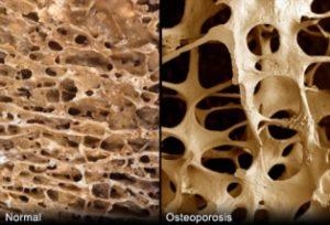 Imagen de hueso normal y con osteoporosis. Dra. María Ariztia, geriatra de la Fundación Matía que participa en la Jornada El Envejecimiento Óseo: Prevención y Soluciones, que organiza el Foro Salud Sendagrup en Donostia-San Sebastián, Mayo 2018