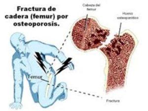 Fractura de cadera (fémur) por osteoporosis. Dra. María Ariztia, geriatra de la Fundación Matía que participa en la Jornada El Envejecimiento Óseo: Prevención y Soluciones, que organiza el Foro Salud Sendagrup en Donostia-San Sebastián, Mayo 2018