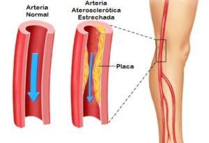 La Claudicación Intermitente es un problema circulatorio por estrechamiento arterial que puede ser tratada mediante Ondas de Choque Extracorpóreas en el Centro Médico Sendagrup de Donostia - San Sebastián