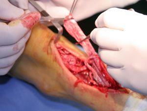 Cirugía Reconstructiva tras una Rotura Aguda del Tendón de Aquiles. Centro Médico Sendagrup de Donostia - San Sebastián