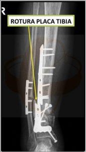 Rotura de una Placa Tibial que da lugar a una PesudoArtrosis, la Fractura ósea que no pega por el Dr. De la Herrán del Centro Médico Sendagrup de Donostia - San Sebastián