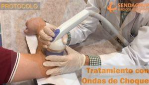 Aplicación de Ondas de Choque extracorpóreas focales en el tratamiento de una tendinopatía crónica, en la Unidad de Ondas de Choque de Sendagrup en Donostia - San Sebastián