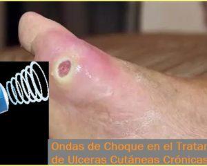 Tratamiento de las Ulceras Cutáneas Crónicas con Ondas de Choque Extracorpóreas en el Centro Médico Sendagrup de Donostia - San Sebastián