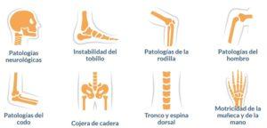 Reprogramación Neuromotriz de la movilidad mediante el método Allyane en el Centro Médico Sendagrup de Donostia - San Sebastián