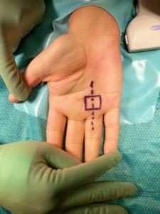 Poleotomía percutánea ecoguiada en el tratamiento del dedo en resorte o dedo en gatillo, por el Dr. Fernando Dávila del Centro Médico Sendagrup de Donostia - San Sebastián